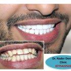 عيادة الدكتور نادر والدكتور احمد لطب الاسنان
