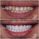 الدكتور ثامر ذيب - سمايل ستوديوز لطب الاسنان