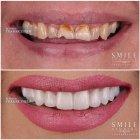 Dr. Thamer Theeb - Smile Studios Dental Center