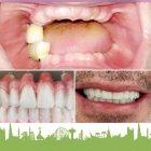 عيادات براش لطب الأسنان - الدكتورة رهام المعاني