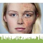 عيادة ديرمالايف للجلدية والليزر - الدكتور نضال عبيدات