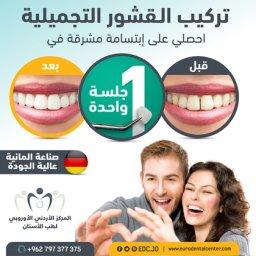ابتسامة مشرقة من الجلسة الأولى باستخدام القشور التجميلية،  المركز الأوروبي لطب الأسنان، عمان - الأردن