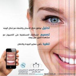 تصميم الابتسامة على الكمبيوتر والتنفيذ بأعلى معايير الجودة والاتقان، المركز الأوروبي لطب الأسنان، عمان - الأردن