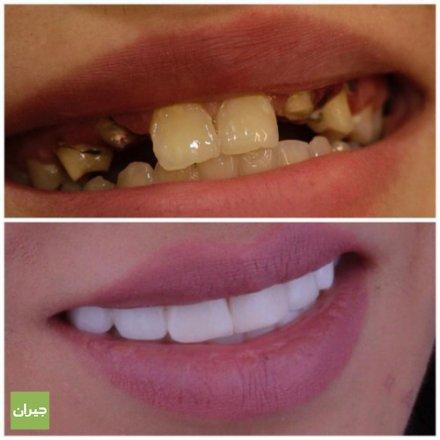 طوارئ اسنان 24 ساعة - sheimsani clinic عيادات شميساني الطبية تقدم عيادات شميساني الطبية الخدمات التالية :- تركيبات البورسلان والزيركون /زراعة الاسنان/تقويم الاسنان /طوارئ اسنان 24 ساعة