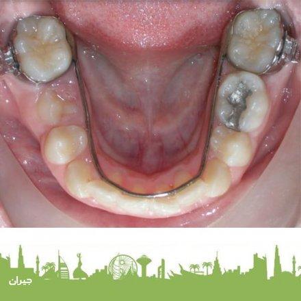 Tooth Fairy Pediatric Dental Clinic
