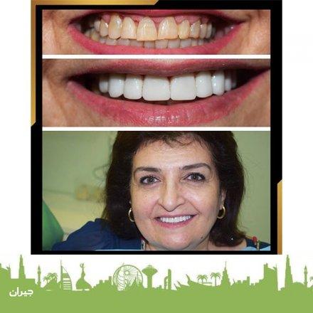 BBC Dental Lounge - Dr. Khalid Obeidat