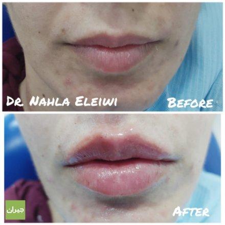 فيلر الشفاه (Lip fillers) هي عملية يتم من خلالها ملء الفراغات الموجودة بين خلايا الشفاه ببعض المواد التي تختلف عن بعضها البعض في الخصائص والاستخدامات، وتشترك جميعها في كونها تمنح الشفاه مظهراً شاباً ونضراً، وتزيد من جمالها.