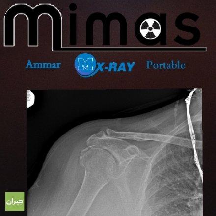 اخصائي تصوير الأشعة المنزلية محمد عمار