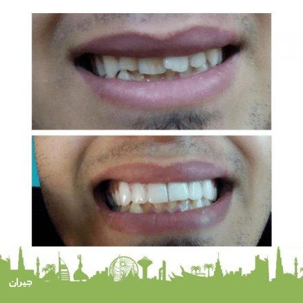 Ward Dental Care - Dr. Mohammad Al Ammouri