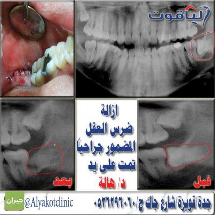 صورة عيادات الياقوت لطب الاسنان