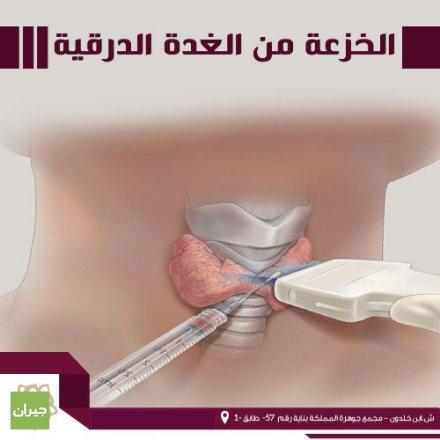عيادة الدكتورة رشا الشيخ علي للأشعة التشخيصية وتشخيص أمراض الثدي/ شارع ابن خلدون. >>جميع فحوصات الأشعة السينية - جميع فحوصات الالتراساوند - فحوصات سلامة الجنين - فحص تصوير الثدي - عمل خزعات للثدي و الغدة الدرقية  X-Ray - Ultrasound - Doppler Ultrasound - Digital Mammogram - FNA - Biopsy>>>   :الخزعة من الغدة الدرقية هي الإجراء الذي يتم فيه أخذ عينة من الغدة الدرقية ليتم تحريها عن قرب تحت المجهر، وهي من الإجراءات التي تسهم في تشخيص مشاكل الغدة الدرقية التي كانت قد كُشفت بالفحص السريري المباشر أو التصوير بالأمواج فوق الصوتية لنسيج الغدة، ويتضمن هذا الإجراء إدخال إبرة رفيعة إلى نسيج الغدّة الدرقية وأخذ العينة بدون الحاجة للتخدير العام، كما يمكن أن يُجرى على شكل خزعة جراحية مفتوحة في بعض الحالات التي يُرجح فيها استئصال النسيج المخزوع بالكامل، وهذا يعتمد على تقدير الطبيب والحاجة الطبية التي تطلبت الخزعة، وهناك العديد من استطبابات طلب الخزعة من الغدة الدرقية إن إجراء الخزعة بالإبرة الرفيعة FNA هو أحد أفضل إجراءات الخزعة من الغدة الدرقية، وهو يوفر معلومات كافية ففيما يخص تشخيص ونفي سرطان الغدة الدرقية، أصبح الخيار الأمثل لأخذ عينة من الغدة الدرقية، ويُعد الإجراء بسيطًا جدًا، وعندما يتم بشكل صحيح وبدون مشاكل، فإن نسبة الخطأ بالنتيجة لا تتجاوز 5%، أي أن احتمالية الكشف عن السرطان تكون سلبية بالخطأ في 5 بالمئة من الحالات.